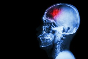 Shift Work Associated with Increased Stroke Severity