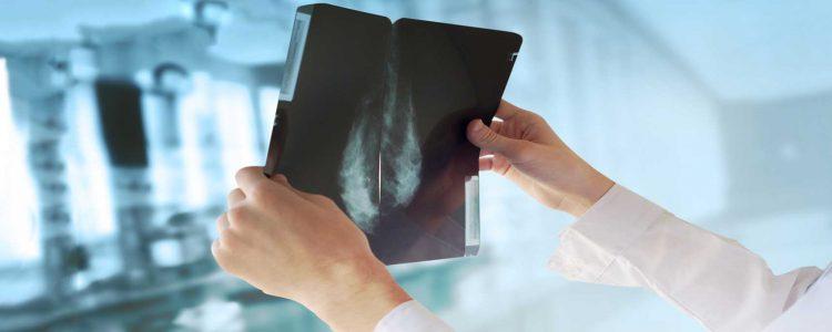 Neue Forschung über Krebs und jene Gene, die den circadianen Rhythmus diktieren