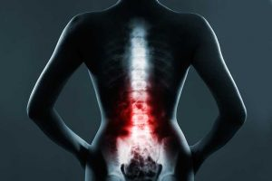 Desynchronization of Our Internal Clock Could be a Risk Factor for Low Back Pain