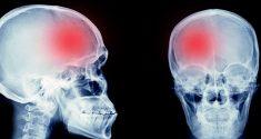 Melatonin und hämorrhagischer Schlaganfall: Nahrungsergänzung führt zu besseren Patientenergebnissen