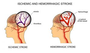 Melatonin and Hemorrhagic Stroke: Supplementation Results in Improved Patient Outcome 3