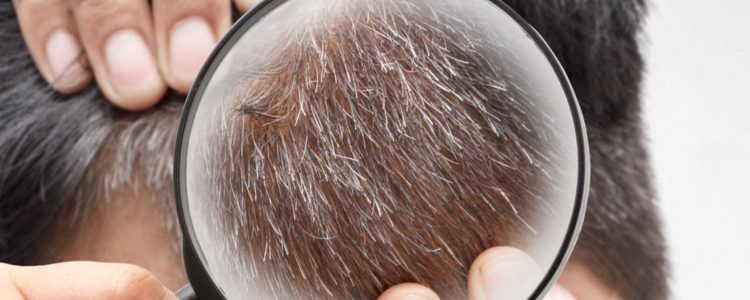 Tissue Aging and Gray Hair Determined by Biological Clock
