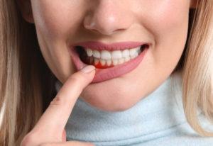melatonin and periodontal disease
